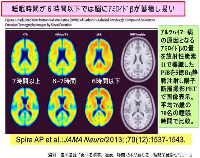 睡眠の質の低下 睡眠時間の減少でアミロイドβ蓄積が生じる可能性を示す図