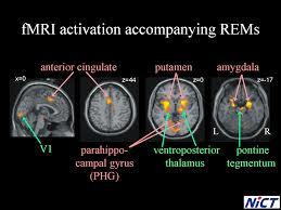 レム睡眠中に海馬 扁桃体が 激しく活動していることを示す図