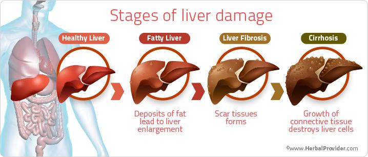 肝障害の進展を示すイラスト