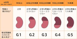 病期の進行にともなうeGFRの変化を示す図
