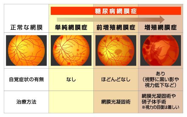 進行に伴う症状 治療方法の変化を示す図