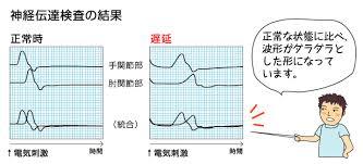神経伝導速度の結果