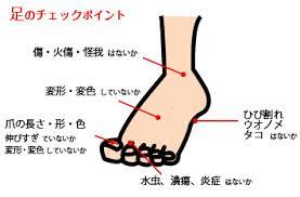 足のチェックポイントをまとめた図