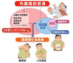 内臓脂肪と高尿酸血症 生活習慣病の関連