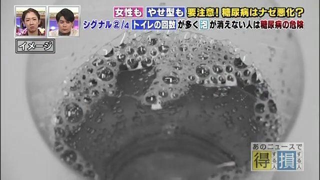 泡が消えない尿の写真2