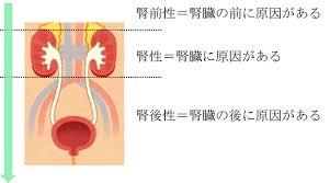 腎前性 腎性 腎後性の各乏尿について説明した図