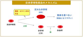 巨赤芽球性貧血への葉酸 B12の関与を示す図