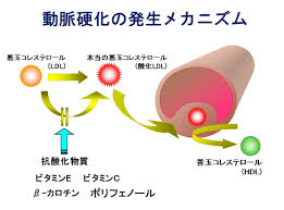 動脈硬化を防ぐ機序を説明する図