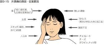 片頭痛の誘因