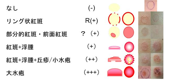 パッチテストの結果を示した図