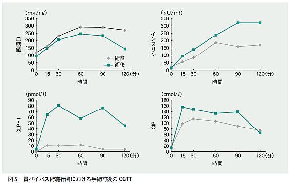 術後の血糖 インクレチンの経時的変化を示したグラフ