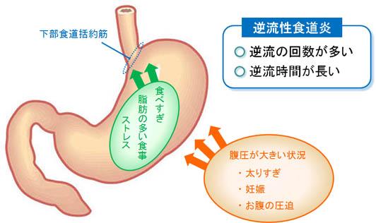 逆流性食道炎と肥満の関連を説明する図