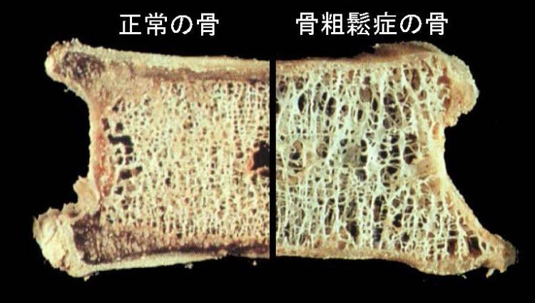 正常な骨と骨粗鬆症の骨の断面図