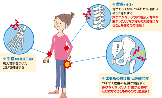 脆弱性骨折が起こりやすい部位