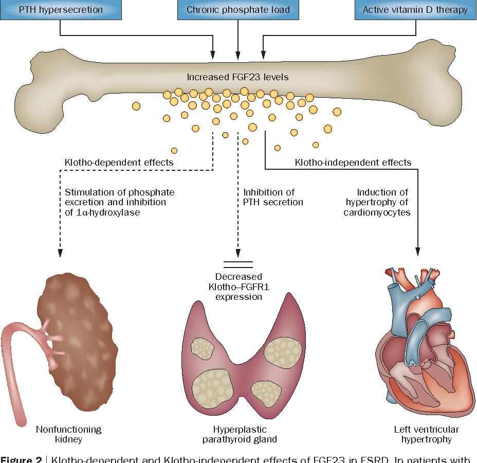 FGF23のさまざまな病気への関与をまとめた図