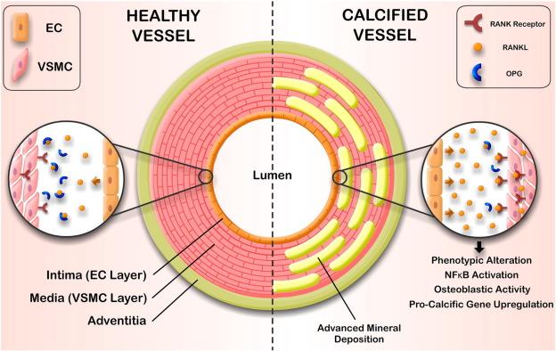 RANKLの動脈硬化への関与