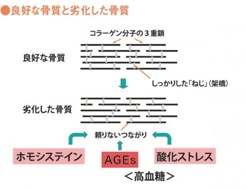 骨質劣化へのAGEの関与の説明図