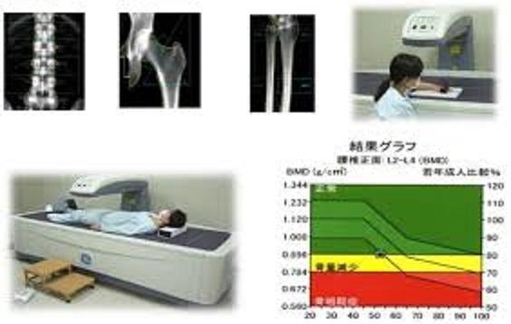 骨量検査の様子と結果表