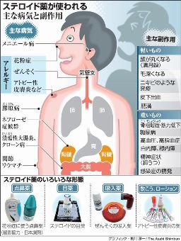 ステロイドが使用される病気の種類と副作用をまとめた図