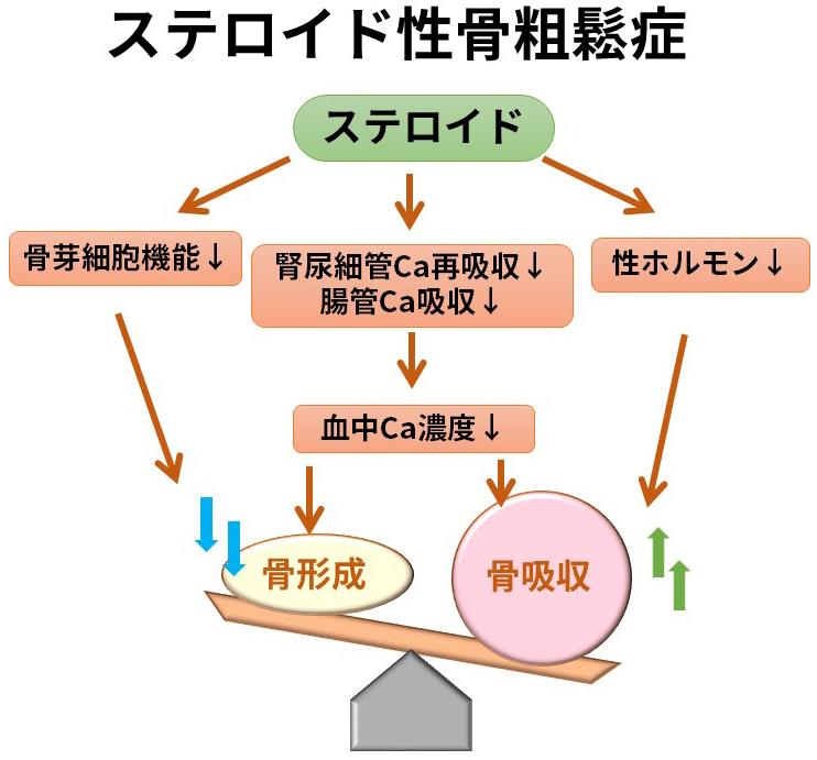 ステロイド性骨粗鬆症の病態をまとめた図