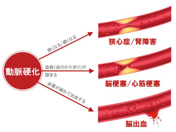 動脈硬化が導く心血管疾患を示す図