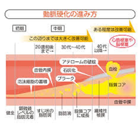 動脈硬化の加齢に伴う進行を示した図
