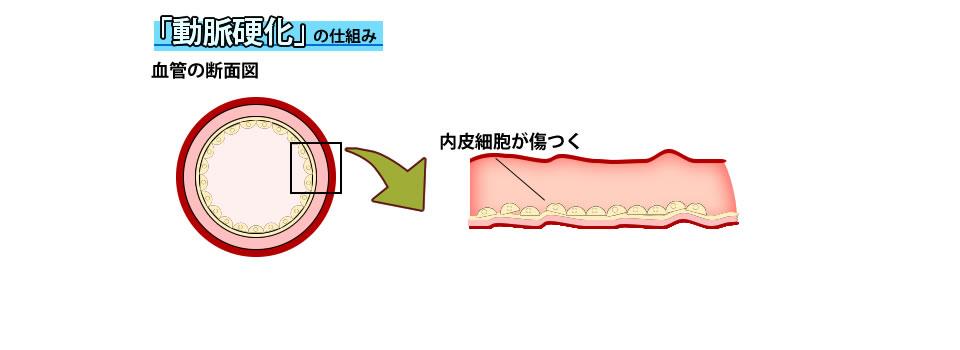 動脈硬化における内皮細胞の傷害を示した図