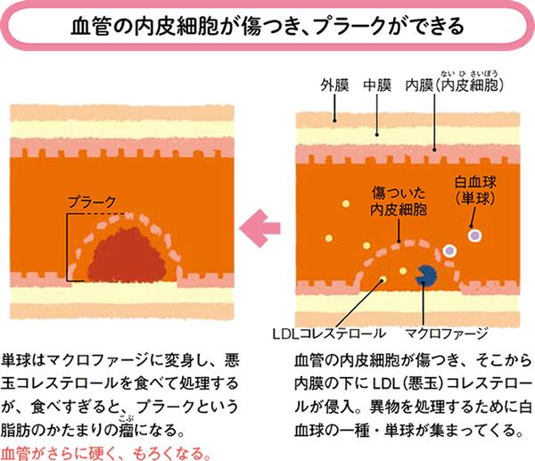 内皮細胞の傷害からプラーク形成への進行を示した図