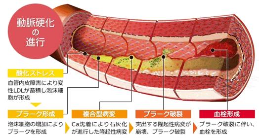 動脈硬化の進行過程を示す図