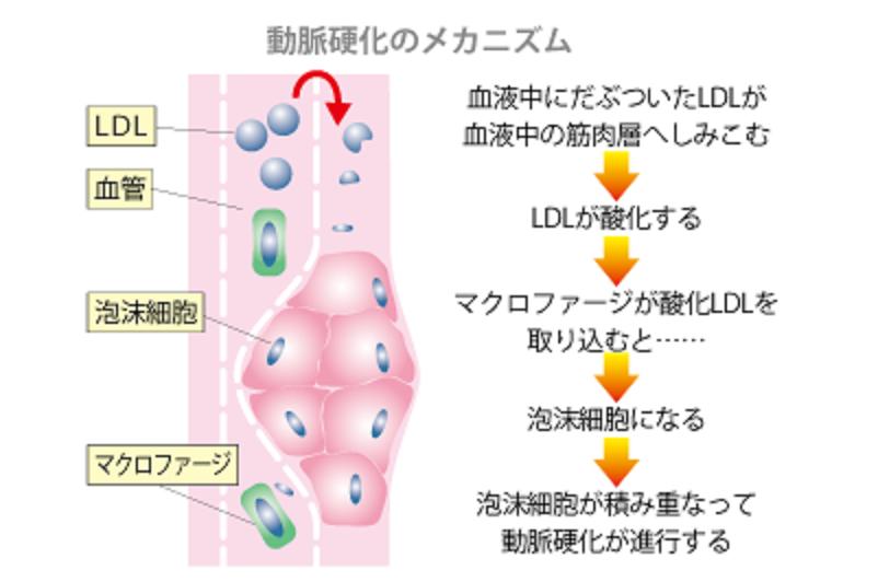 動脈硬化が進行するプロセスを解説した図1