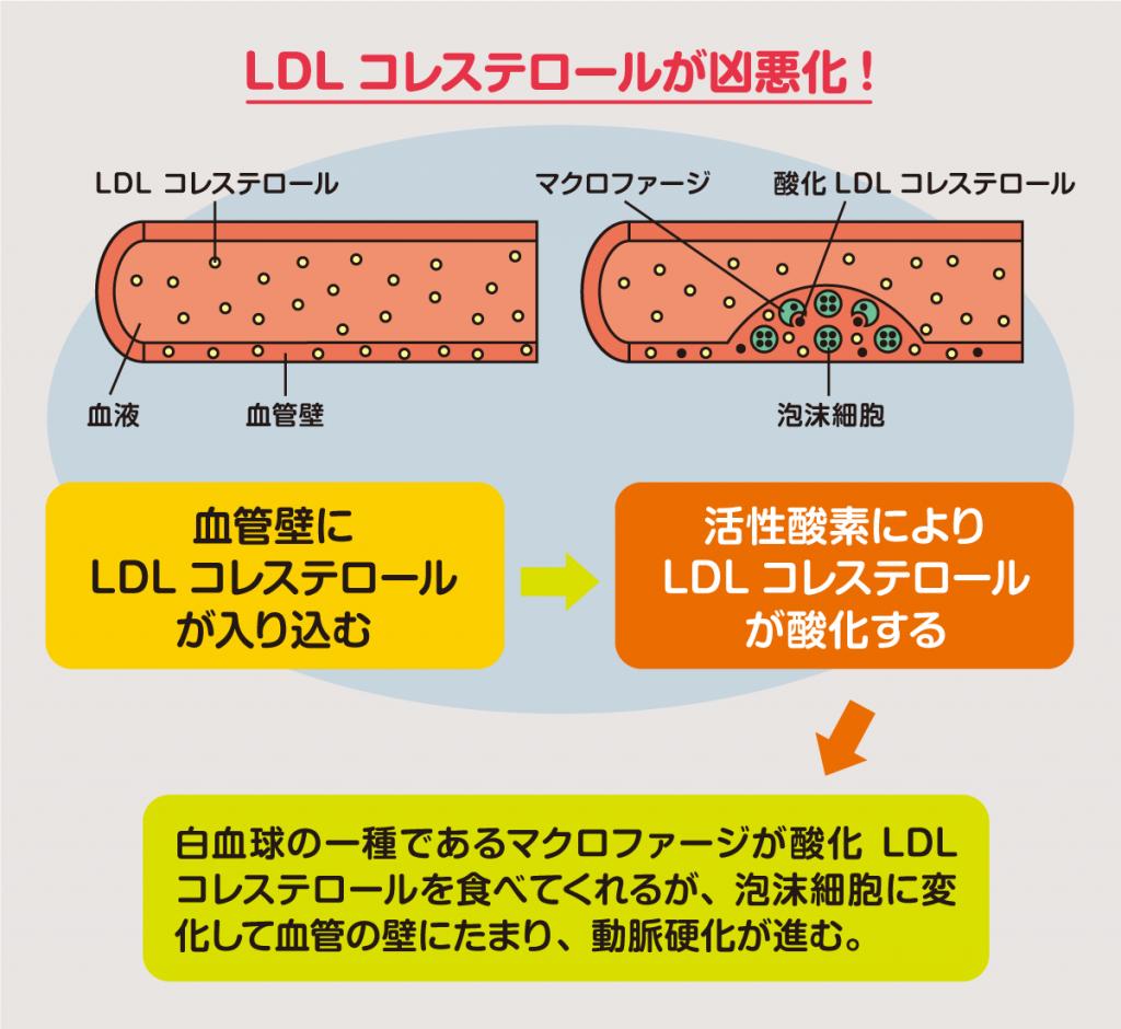 動脈硬化と酸化LDL sdLDL