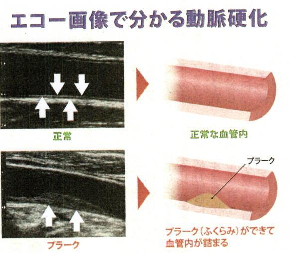 エコー検査で見える血管内プラーク