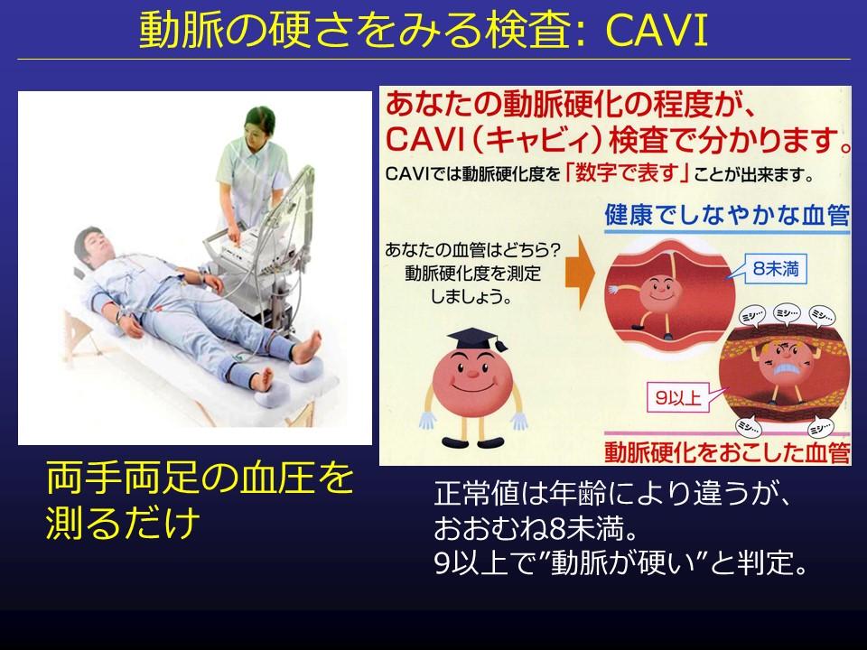 "CAVIの説明図"""""