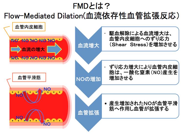FMDの説明図