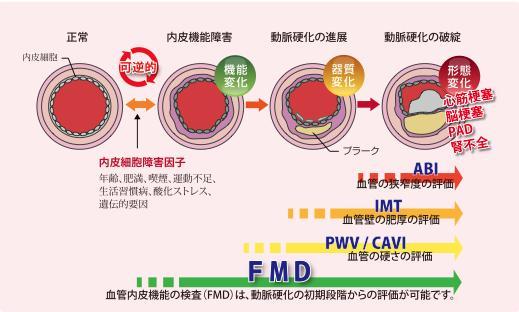 動脈硬化の進行度により適した検査が選択されることを示す図
