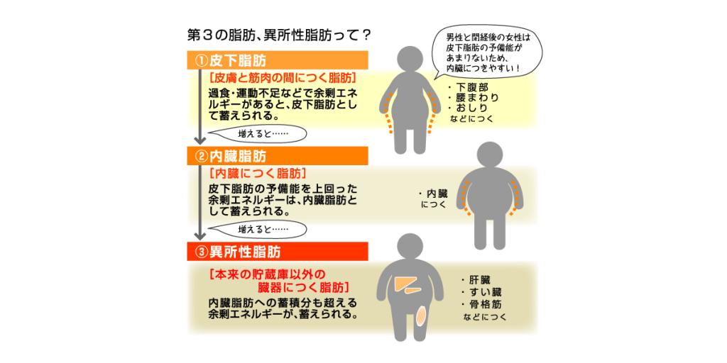 肝臓での異所性脂肪のたまり方
