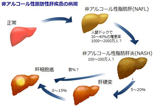 NASHから肝硬変 肝がんへの進展