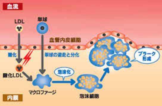 酸化LDL-Cを摂りこんだマクロファージが泡沫細胞になりプラークを形成する