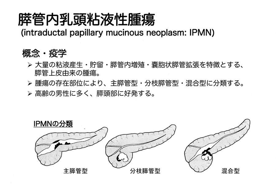 膵管内乳頭粘液性腫瘍・IPMN