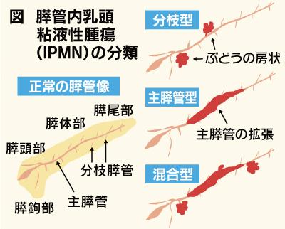 IPMNの分類についてまとめた図