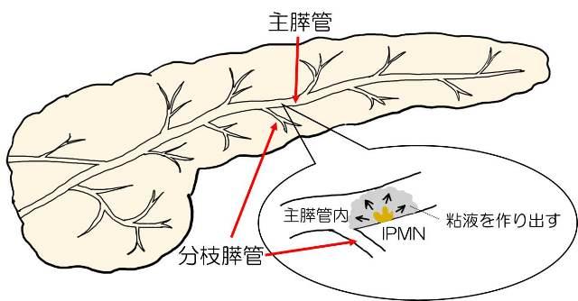 主膵管型の病変部位を示した図
