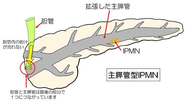 主膵管が全長にわたって太くなることを示す図