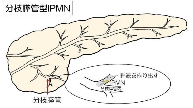分枝型の病変部位を示した図