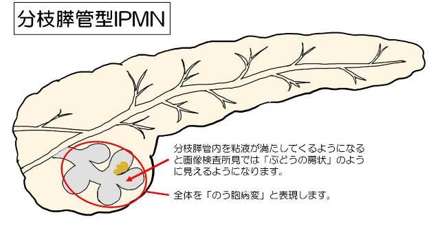 ブドウの房状に多房性ののう胞が見えることを示す図