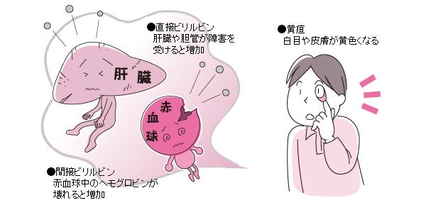 肝障害や胆道の病気で胆汁が排泄されなくなると  血中にあふれ出て黄疸となることを示す図