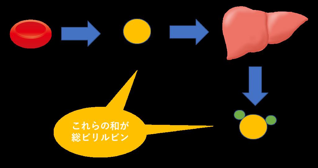 肝障害では 直接ビリルビンが 貧血などでは 間接ビリルビンが  それぞれ増加することを示す図
