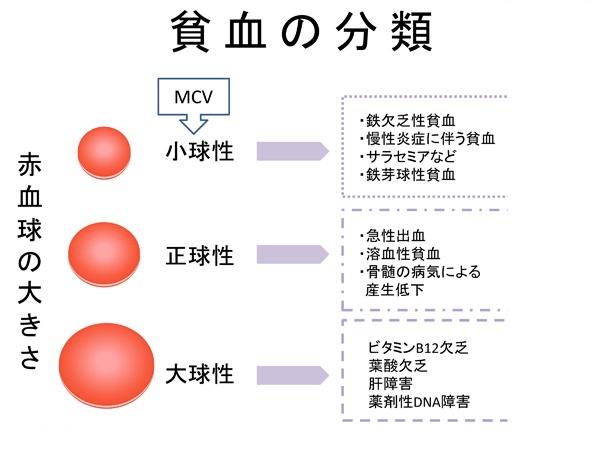 赤血球恒数による貧血の分類を示す図