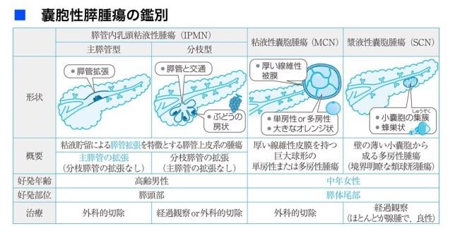 各種膵のう胞の鑑別図