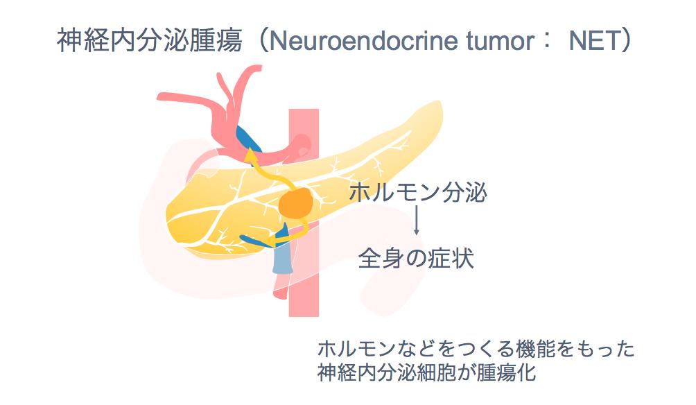 膵神経内分泌腫瘍・NENの説明図