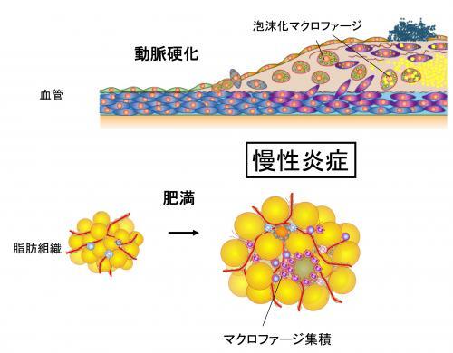 動脈硬化と慢性炎症の関連を示す図